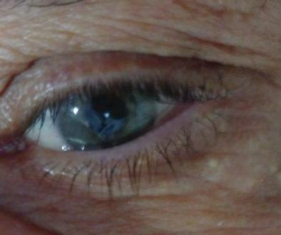 olhos relato beth